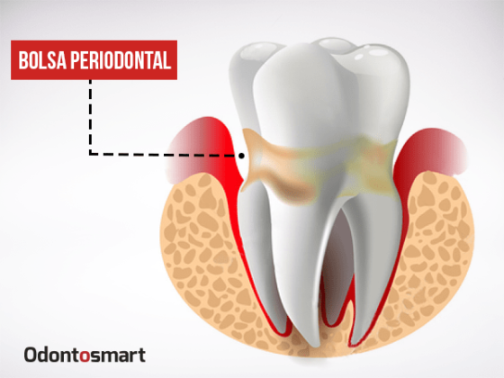 Una enfermedad de la periodoncia es la bolsa periodontal