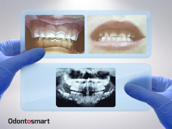 Gnatología como especialización odontológica