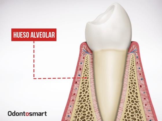 Parte esencial de la periodoncia es el hueso alveolar