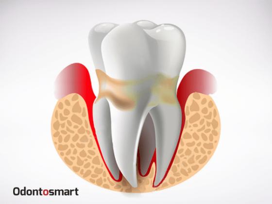 Una enfermedad de la periodoncia es la periodontitis