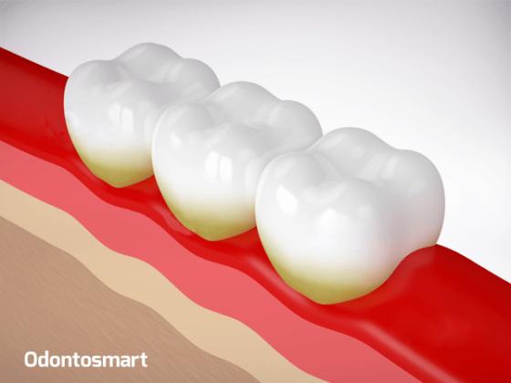 Una enfermedad de la periodoncia es la Placa bacteriana
