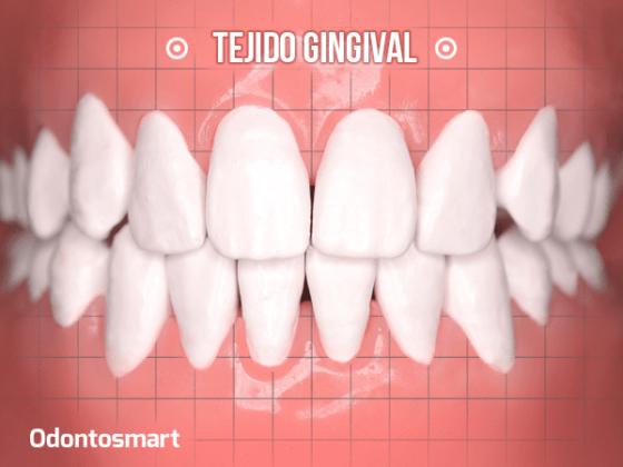 Parte esencial de la periodoncia es el tejido gingival