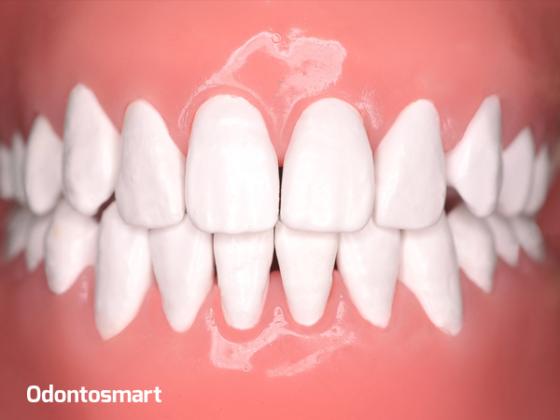 Parte esencial de la periodoncia es la unidad dentogingival